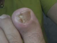 Juanma. Onicocriptosis grado 3, con ferula.